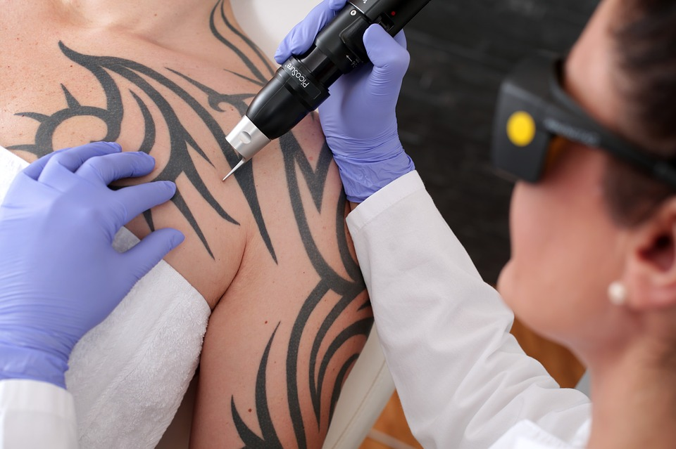 tatoo removal: artist placing tatoo