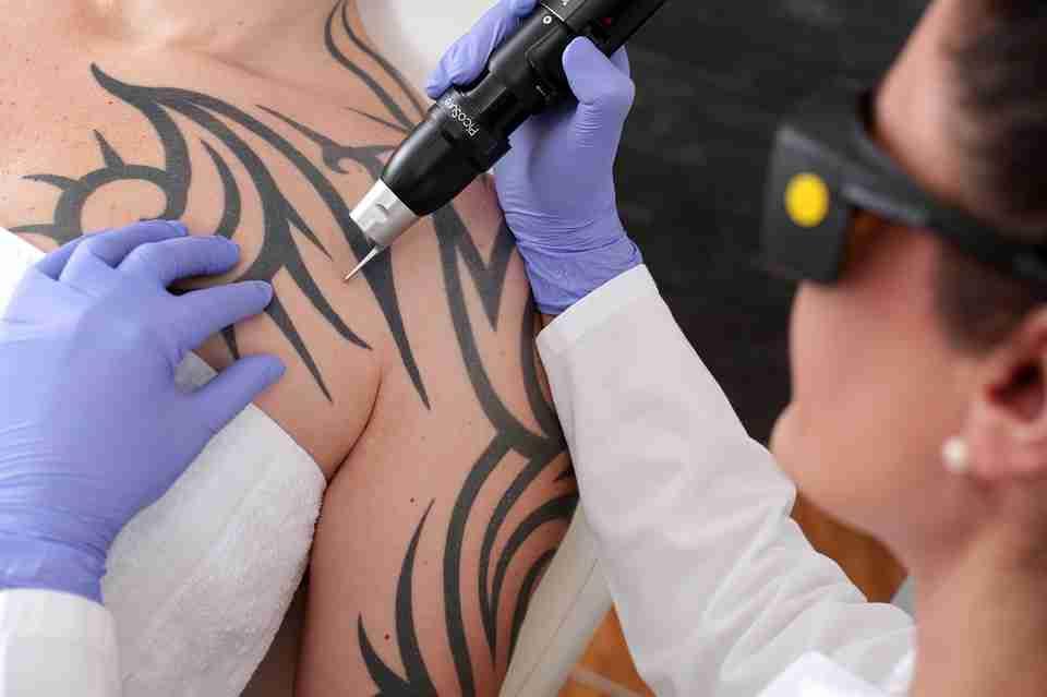 tatoo removal: artist placing tatoo