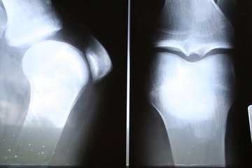 Close up scan photo of a person's knees