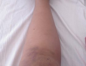 my bruised knee after a fall.
