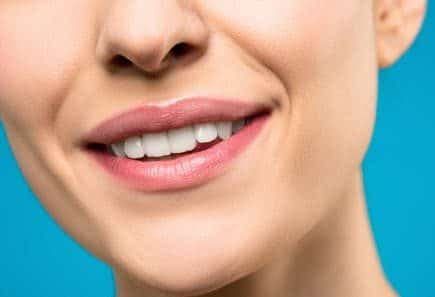 how to take care of your teeth properly: woman smiling.