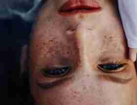 undergo skin rejuvenation