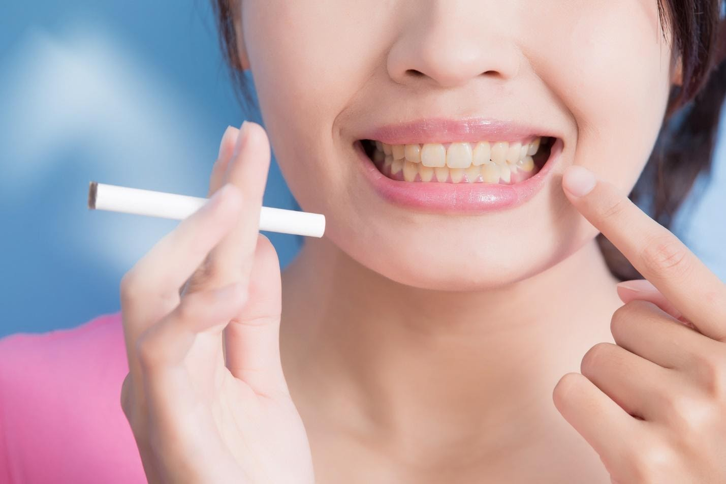 Causes of yellow teeth: woman holding cigarette and pointing at her teeth.