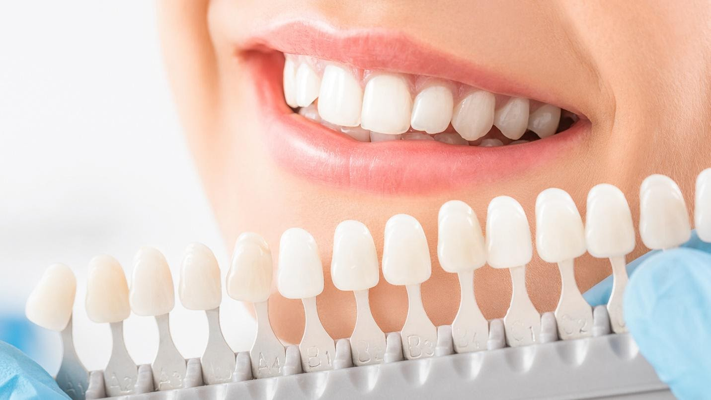 Professional teeth whitening treatment.