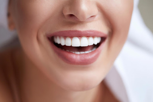 Professional teeth whitening treatment